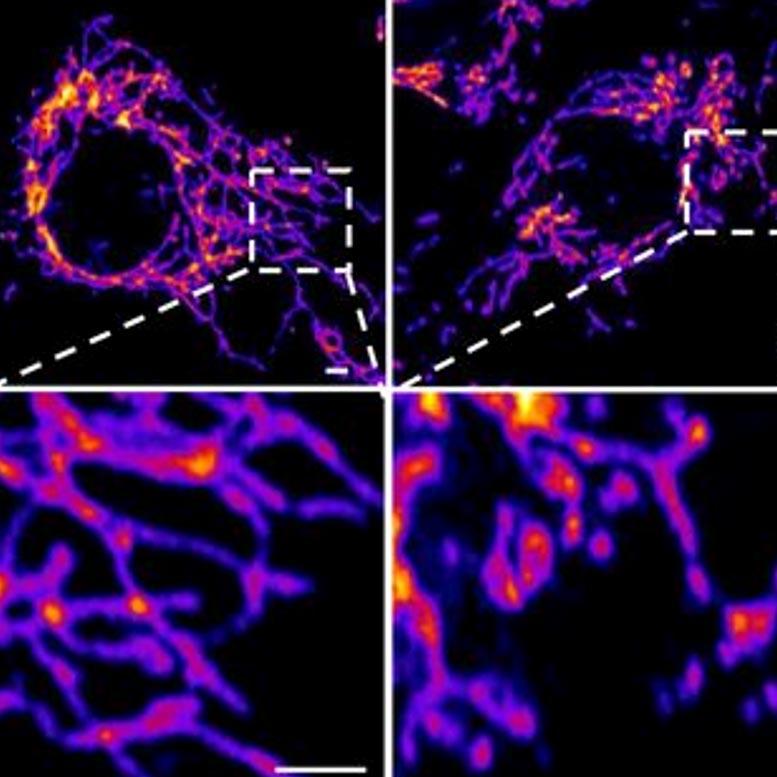 Das hohe Protein des Coronavirus greift das Gefäßsystem auf zellulärer Ebene an
